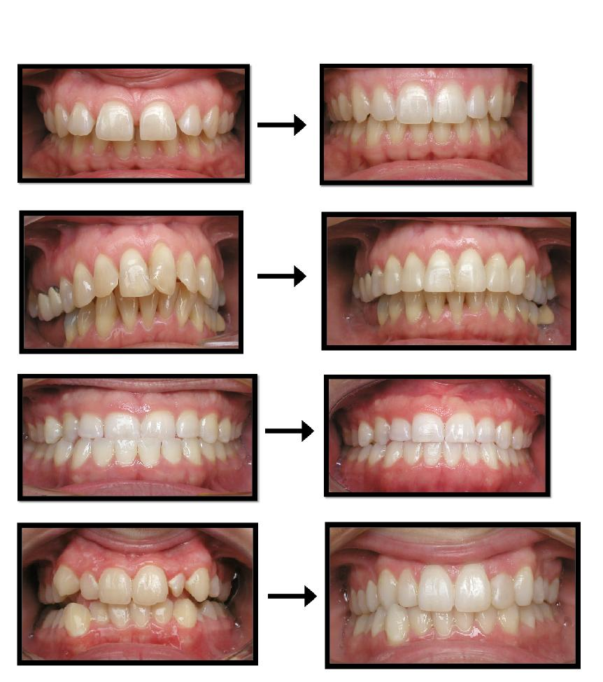 INVISALIGN 20before 20and 20after 20treat